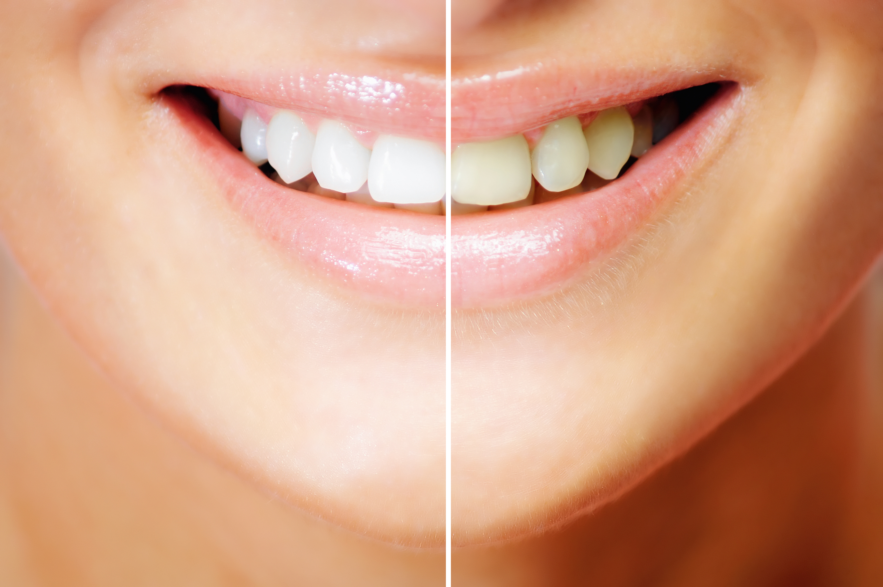 Are You A Good Candidate for Teeth Whitening?