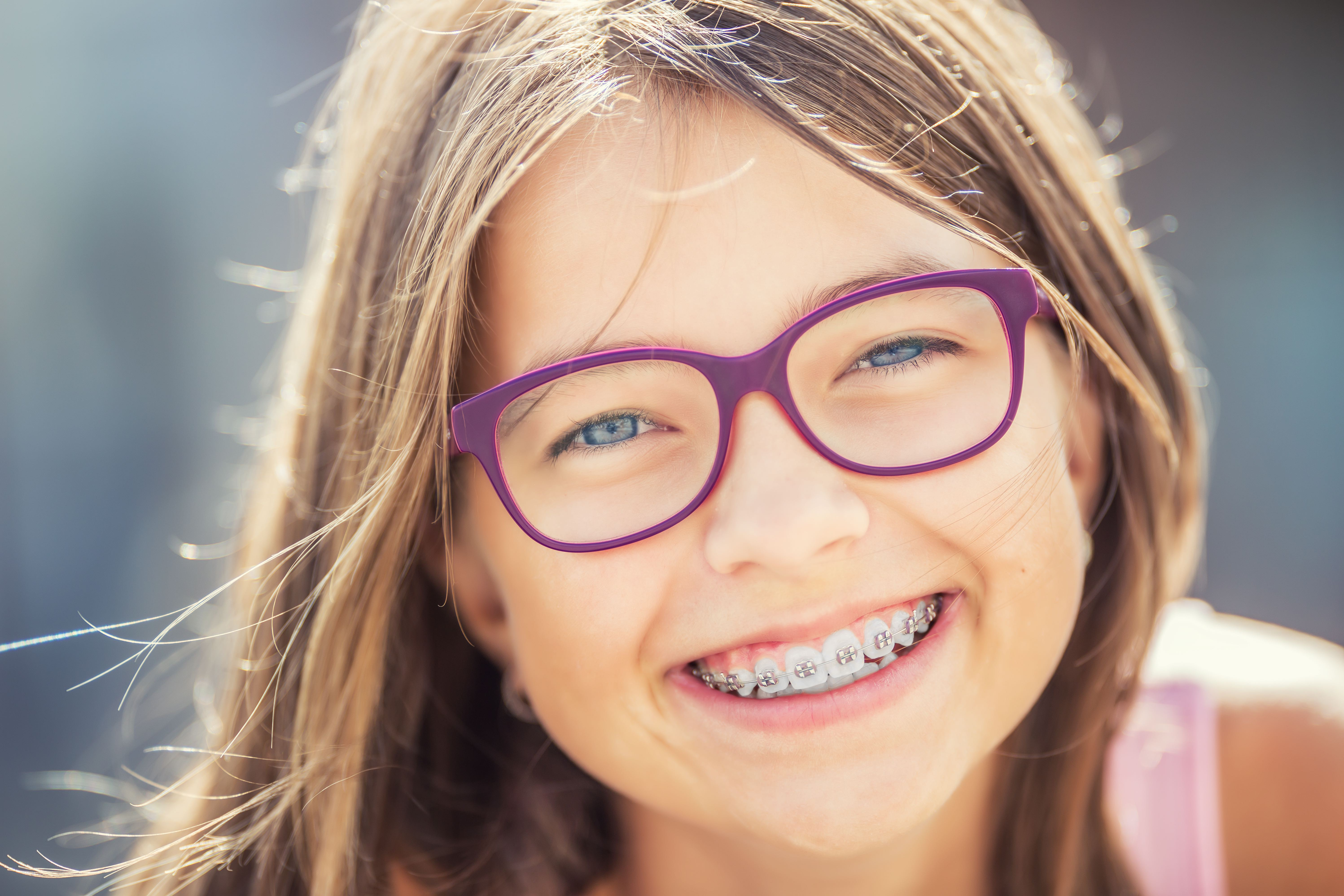 All Your Braces Questions, Answered!