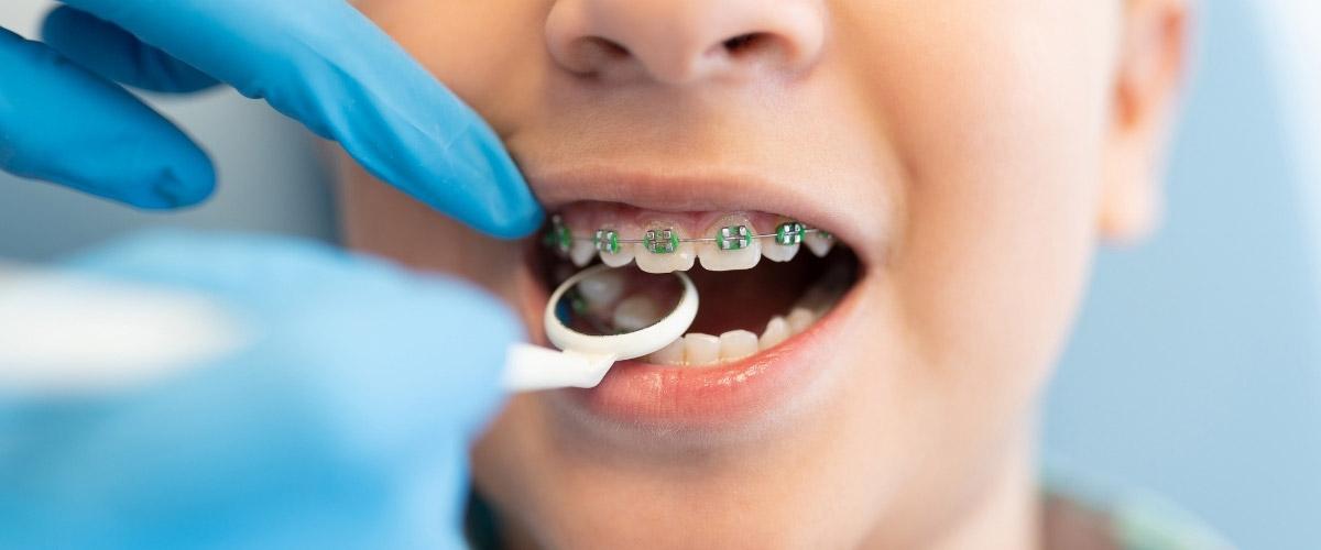 getting braces put on